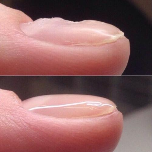 Выравнивание ногтевой пластины 2019. Способы выравнивание ногтевой пластины