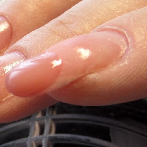 Ногти трамплины. Растущие вниз ногти (клюнувшие)