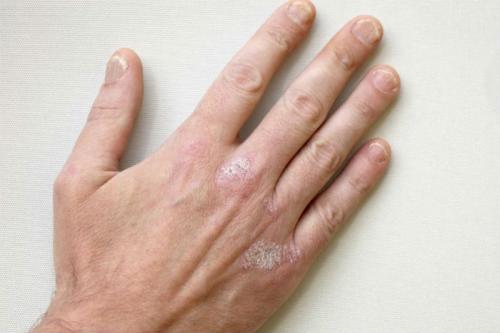 Сухая кожа на пальцах рук витамины. Когда появление трещин на руках рассматривается, как симптом