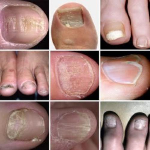 Ногти на больших пальцах ног бугристые. Заболевания ногтей