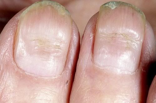 Поперечные бороздки на ногтях. Причины появления и лечение поперечных борозд на ногтях