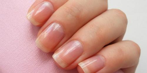 Глубокие вмятины на ногтях. Что является нормой