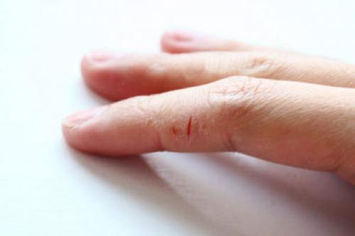Трескаются уголки пальцев у ногтей. Избавляемся от трещин на пальцах рук около ногтя: советы специалистов
