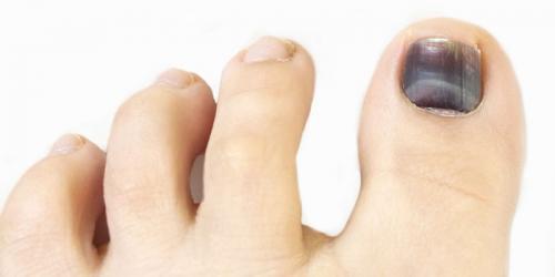 Темные пятна на ногтях ног. Что могут означать темные пятна на ногтях больших пальцев ног
