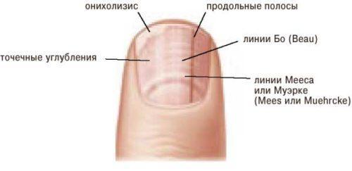 Вмятины на ногтях ног. Почему появляются ямки и дырочки на ногтях, о чем они говорят