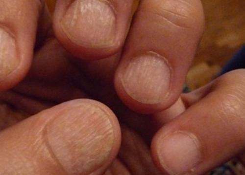 Неровная ногтевая пластина на большом пальце. Что представляют собой волнистые ногти, их виды