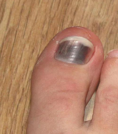 Черное пятно на ногте после удара. Черные пятна на ногтях: причины и лечение