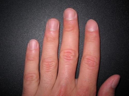Ямы на ногтях рук. Соматические заболевания