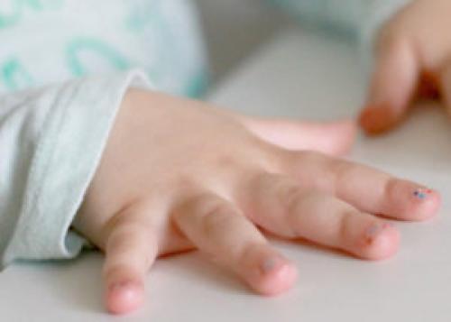 За сколько растут ногти. Скорость роста ногтей