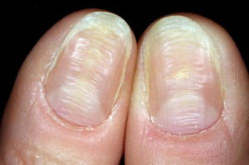 Ногти бугристые на ногах. Почему ногти становятся бугристыми, не ровными
