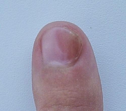 Красные пятна под ногтями на руках