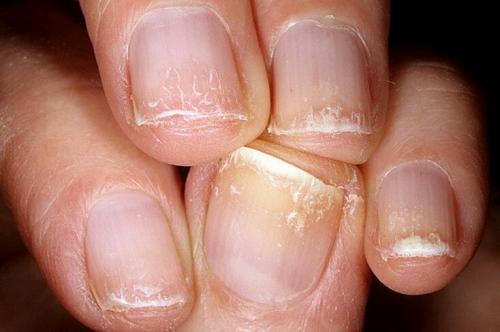 Черные точки на ногтях после гель лака. Как не попасть в больницу после маникюра. Все последствия от гель-лаков