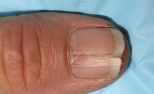 Черная полоса на ногте большого пальца ноги. Черные полоски на ногтях