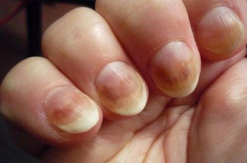 На ногтях коричневые точки на. Коричневые пятна на ногтях