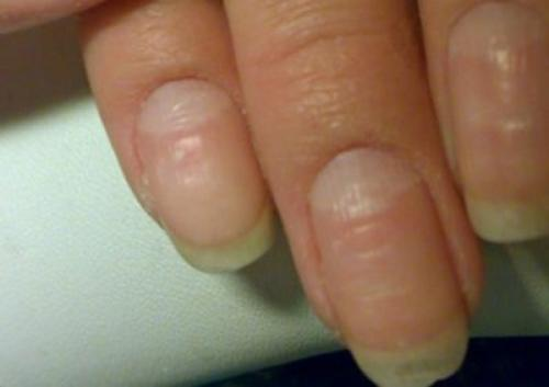 Бугристые ногти на руках. Причины