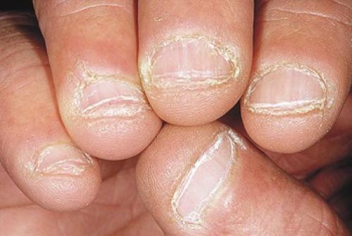 Сухая кутикула и кожа рук. Шелушащаяся сухая кожа