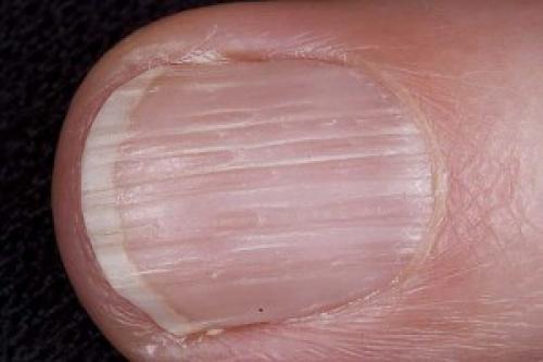 Вмятины на ногтях рук причины. Авитаминоз