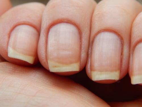 Полосы и вмятины на ногтях. Сущность явления