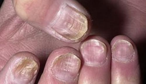Точечная истыканность ногтей. Ваши ногти расскажут о здоровье. Причины и лечение наперстковидной (точечной) истыканности ногтей