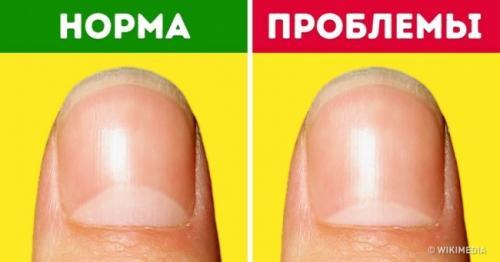 Темная кожа вокруг ногтей. 13проблем создоровьем, окоторых предупреждают лунки наногтях