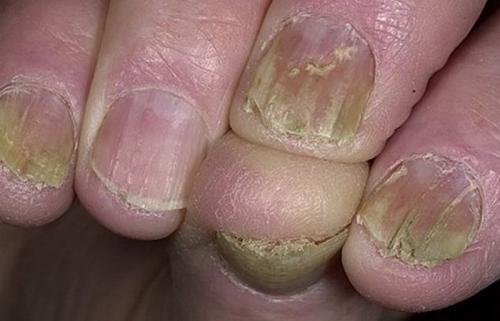 Ногтевая пластина неровная бугристая. Волнистые ногти на руках: как лечить в домашних условиях