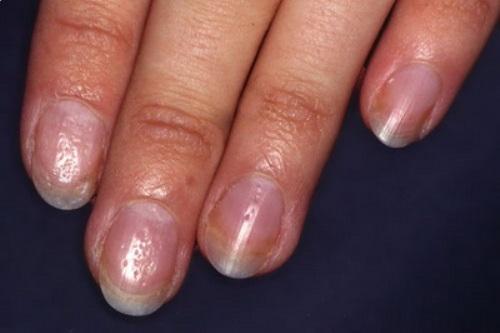 Вмятины на ногтях рук причины. Причины и лечение наперстковидной (точечной) истыканности ногтей