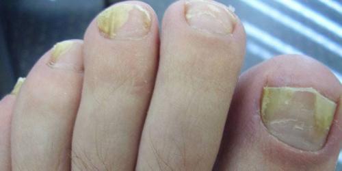 Nail defender лак для ногтей от грибка. На какой стадии заболевания эффективны