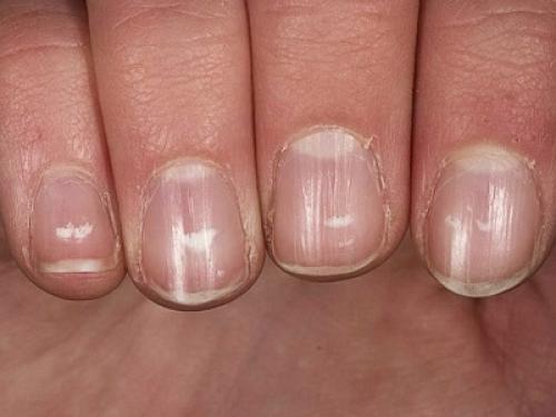Точки на ногтях в виде дырочек причины. Вмятины и ямки на ногтях: причины, лечение