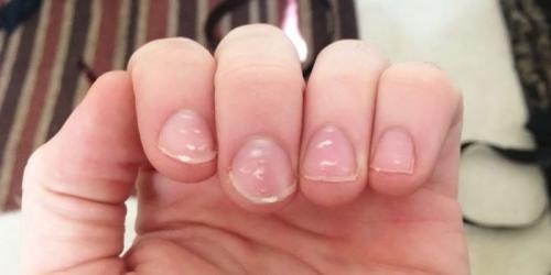 Точечные углубления на ногтях. Почему появляются точки на ногтях