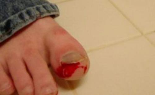 Почему ногти выпадают на ногах. Причины, вызывающие онихолизис