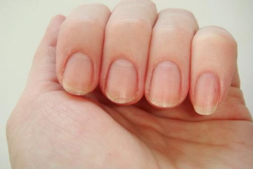 Почему кожа вокруг ногтей сухая. Почему сильно сохнет кожа вокруг ногтей, грубеет на руках и ногах: причина