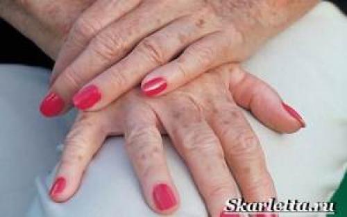 Красота на руках причины. Пигментные пятна на руках. Причины появления и борьба с пигментными пятнами на руках