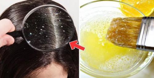 Маска для волос от перхоти и зуда в домашних условиях. Домашние маски для головы от перхоти