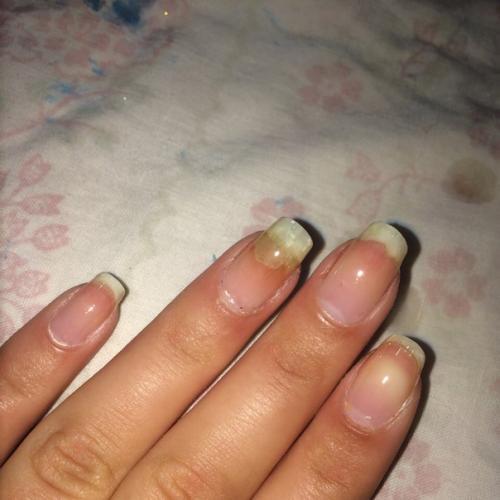 Влияние ультрафиолета на грибок ногтей
