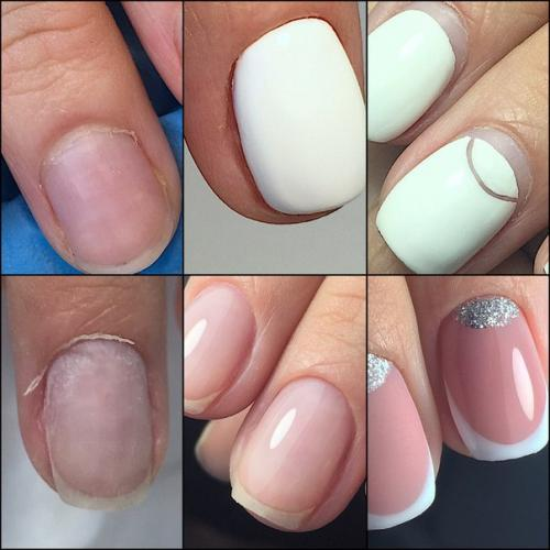 Тонкая кутикула. Очень часто возникает вопрос что делать с тонкой налипшей кутикулой, которую не отдерешь с ногтя и которая кровоточит при любом не ловком движении?