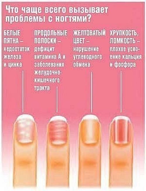 Белое пятно на ногти